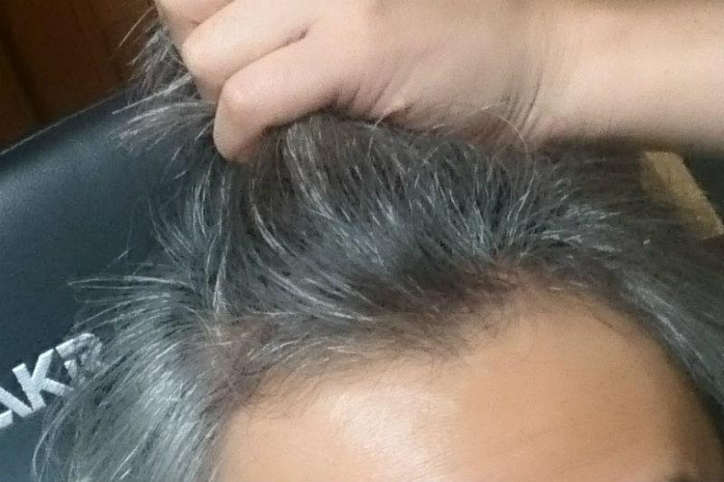 生え際の抜け毛でM字ハゲ進行