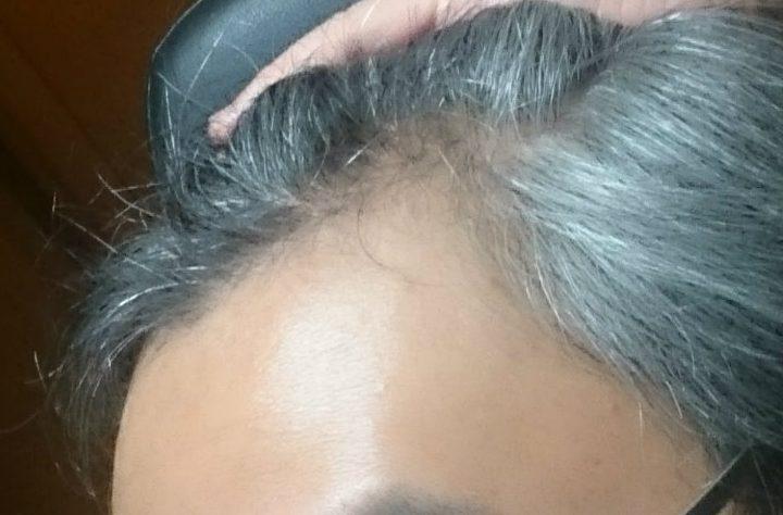 フィナステリドでの初期脱毛 M字部分